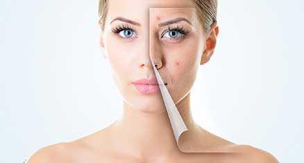 پوست شما به چه مراقبتهایی نیاز دارد؟